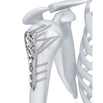 3.5 mm LCP Proximal Humerus Plate