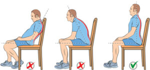 حرکات ورزشی برای کاهش درد سیاتیک