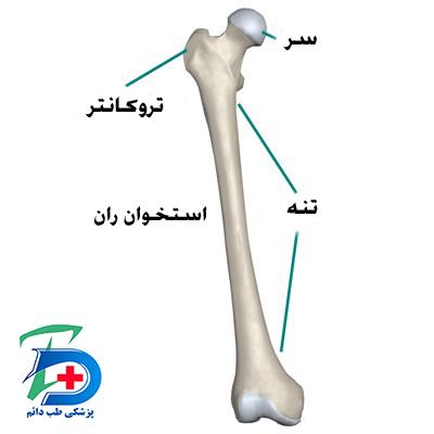 آناتومی استخوان ران